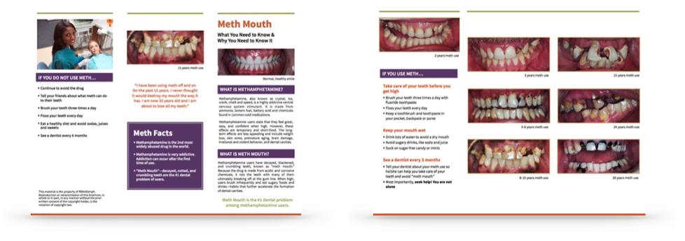 meth-mouth-prevention-brochures